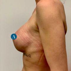 Vollständig submuskuläre Brustvergrösserung mit innerem BH aus der Arteo Praxis Düsseldorf