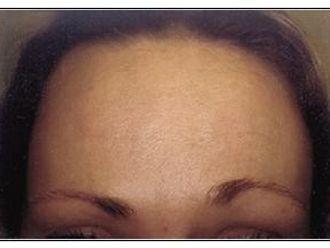Botox - 781735