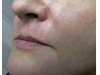 Botox - 781737