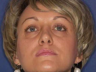 Nasenkorrektur - 780666