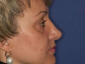 Nasenkorrektur - 780667