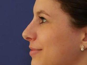 Nasenkorrektur - 780669