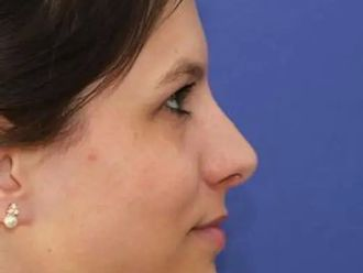 Nasenkorrektur - 780670