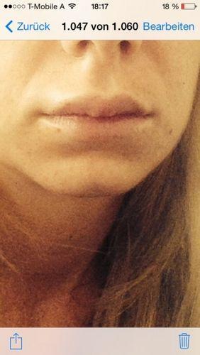 Lippen aufspritzen wie lange geschwollen