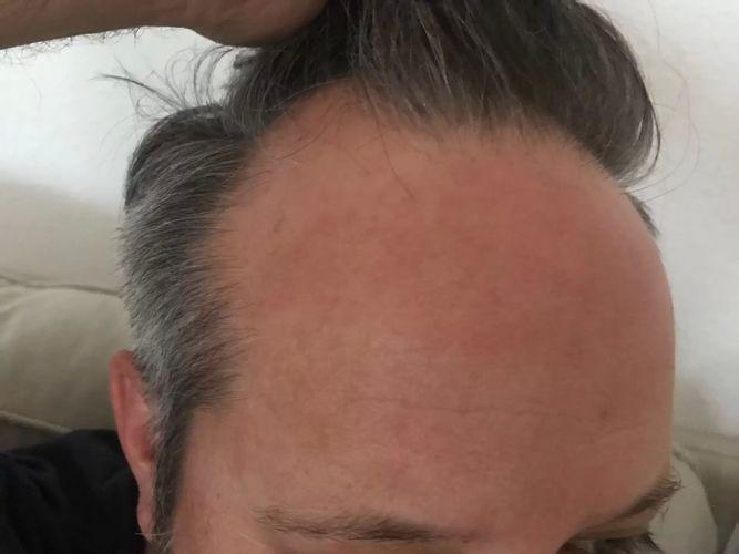 Mann große stirn Grosse Pointe