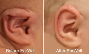 Earwell vorher nachher