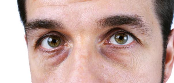 Wer ist ein geeigneter Kandidat für eine Entfernung von Augenringen?