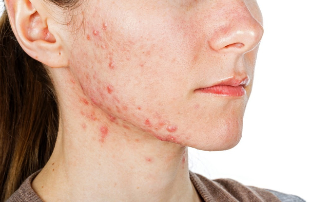 Wie behandelt man Akne