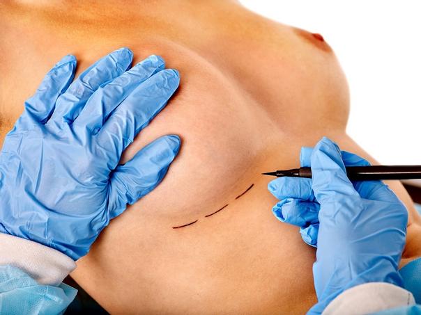 Häufig ist ein erneuter chirurgischer Eingriff die einzige Möglichkeit gegen Rippling