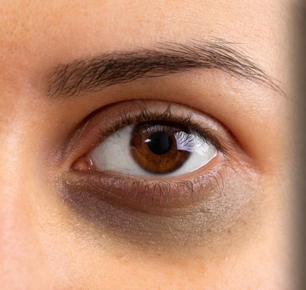 Früher oder später sind fast alle Menschen von Augenringen betroffen - jedoch gibt es viele Möglichkeiten der Entstehung entgegenzuwirken oder sie dauerhaft entfernen zu lassen
