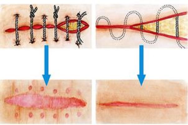 Schema zur chirurgischen Narbenentfernung