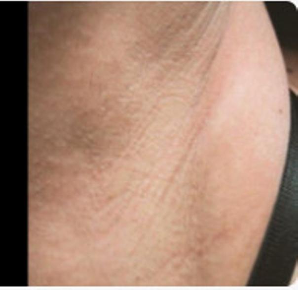 Vorher-Nachher Bild der Haarentfernung in der Achsel - Candela