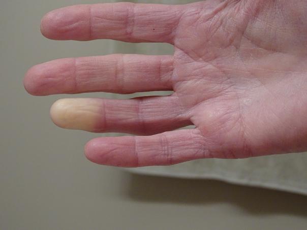 Rot-Blau gefärbte Finger sind typisch für das Raynaud Syndrom