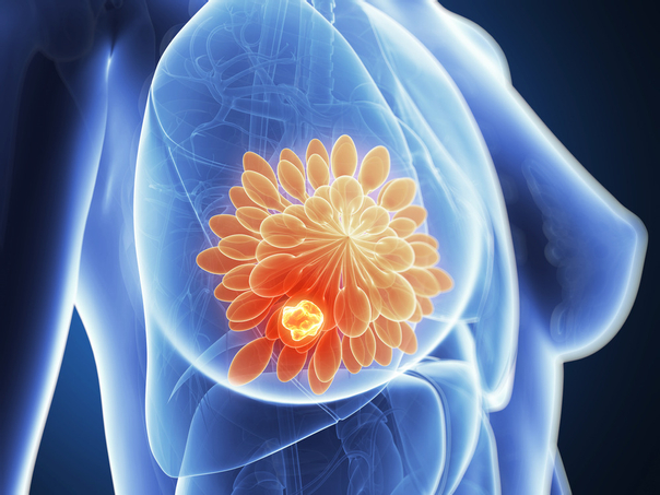 Mastektomie: Für wen?