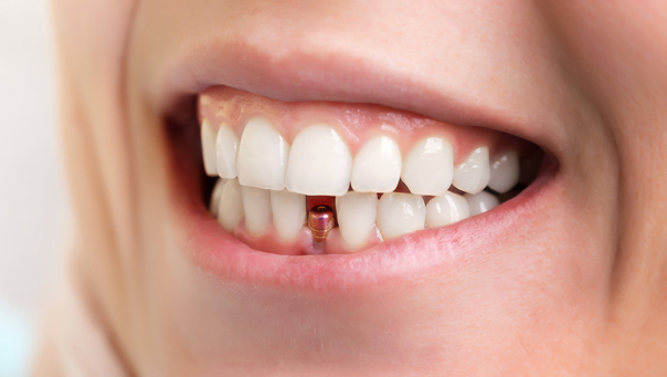 Implantate können in ein frisches Loch nach einem gerade gezogenen Zahn sowie in einem bereits länger zahnlosen Kiefer eingesetzt werden