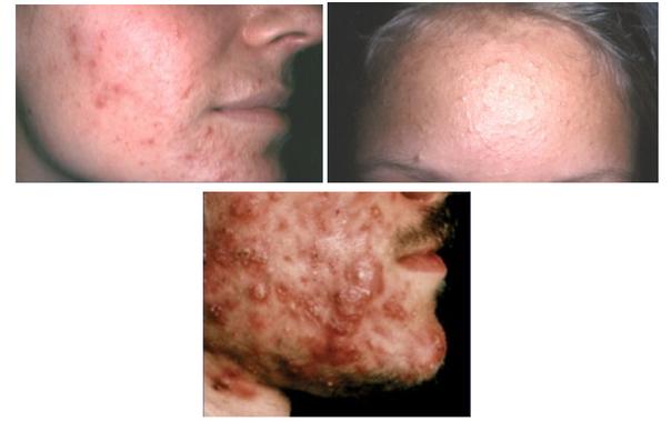 Welche Behandlungsmöglichkeiten gibt es für Akne?