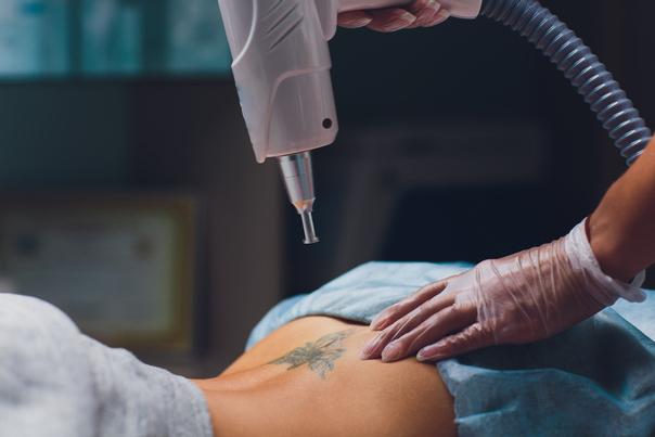 Jedes Tattoo wird individuell behandelt,  viele Faktoren an, wie Größe, Farbigkeit, Zeitaufwand sind entscheidend