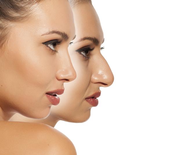 Genesungszeit der Nasennachkorrektur