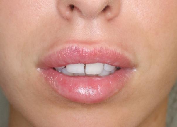 Natürliche Ergebnisse der Lippenvergrößerung sind aktuell gefragt - Dr.med. Thorsten Sattler