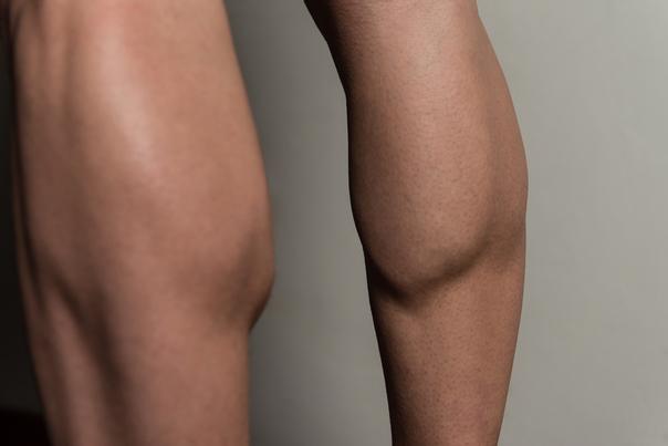 Stark überentwickelter Wadenmuskel