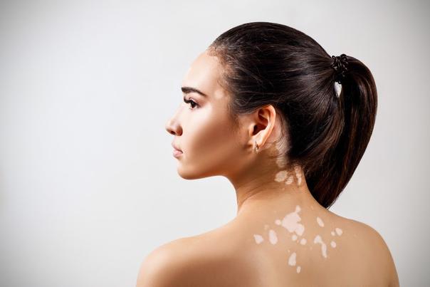 Wie kann man der Entstehung von Pigmentflecken präventiv entgegenwirken?