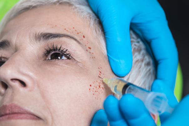PRP Therapie um Falten und müde Haut zu korrigieren