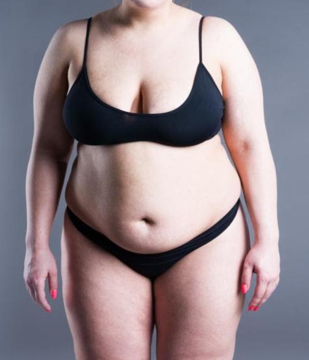 Die Sleeve-Gastrektomie ist eine der sichersten Techniken zur Bekämpfung der Adipositas bei Patienten mit einem Body-Mass-Index über 40.