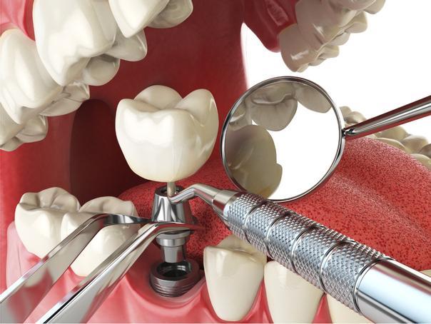Das Einsetzten des Implantats nimmt zwischen 30 und 90 Minuten in Anspruch