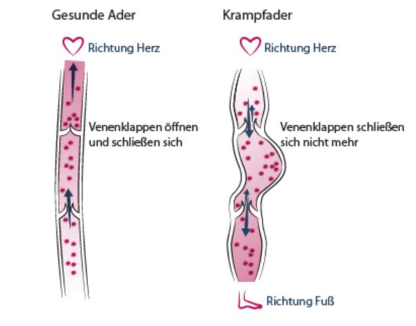 Gesunde und geschädigte Venen - Angioclinic