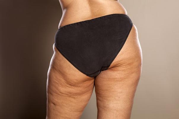 Fettansammlung und Cellulite an den Hüften