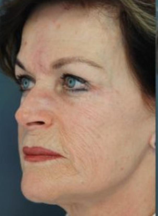 Chemische Peelings helfen den Hautton zu verfeinern und die -alterung zu mildern