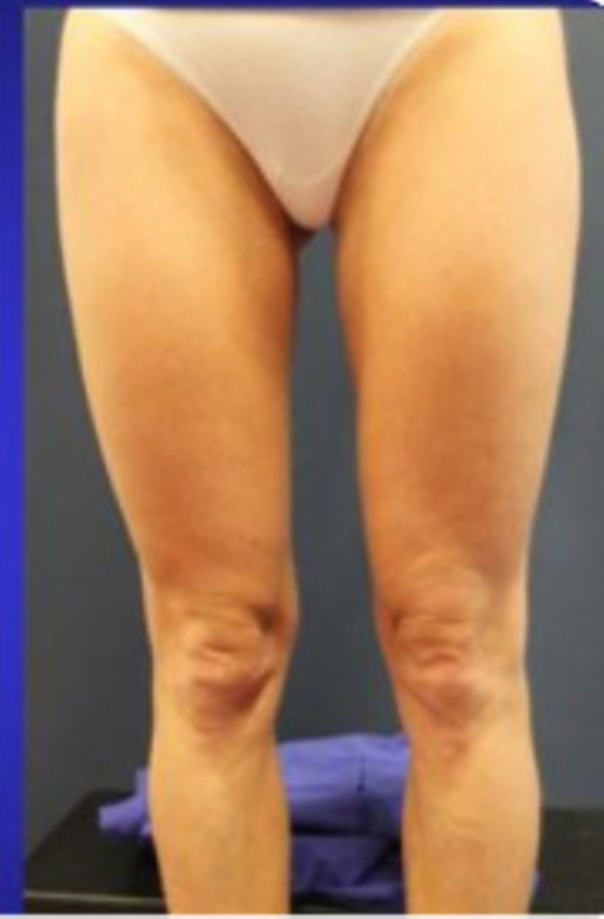 Straffere, dünnere Oberschenkel mit Hilfe von Kältetherapie - Dr. Martin Barsch MBA