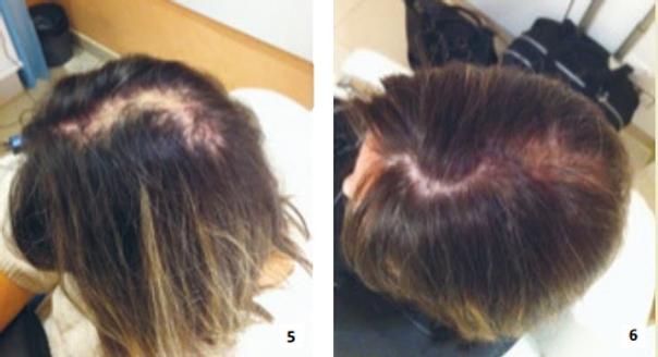 Mikropigmentierung gilt auch als innovative Methode der Haarverdickung