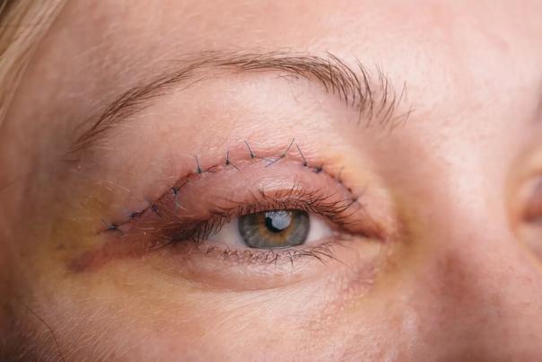 Risiken sind sehr selten bei Augenlid-Operationen