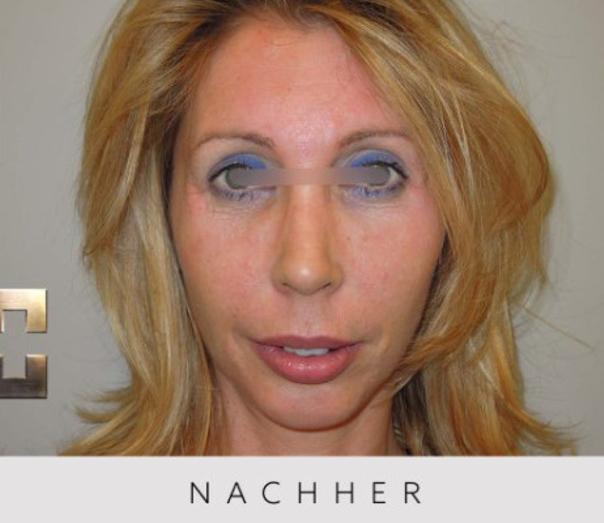 Nasenkorrektur - Dr. Georg M. Huemer