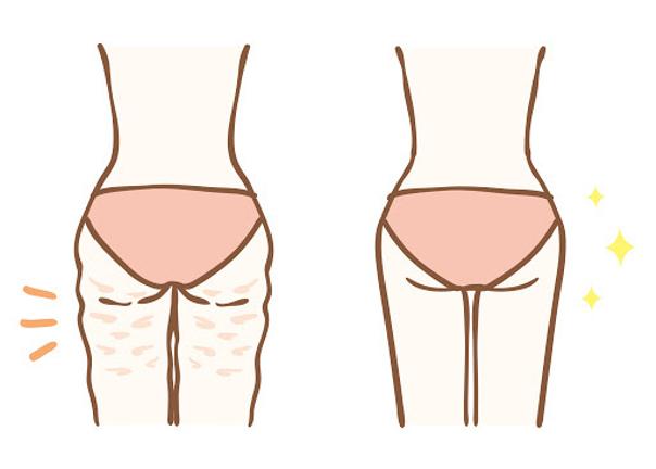 Die Oberschenkelstraffung reduziert den Umfang und strafft die Haut