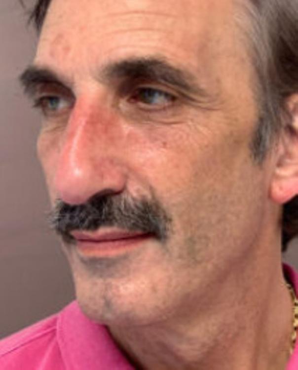 Vorher Fotos des Phenol-Peelings - Dr. Dr. med. Frank Muggenthaler