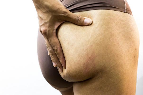 Wenn der Po flach und erschlafft ist, gibt es viele ästhetische Behandlungen, die diesen makel korrigieren können