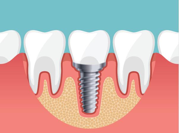 Aus ästhetischer Sicht stellen Zahnimplantate einen perfekten Ersatz der natürlichen Zähne dar