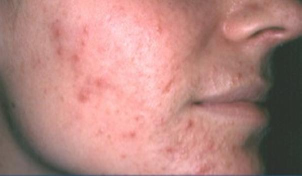 Akne kann in der Form von Mitessern bis hin zu schweren Pusteln und Entzündungen auftauchen - Hautarztpraxis Dr. Degenhardt