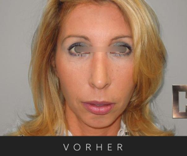 Vor der Nasenkorrektur - Dr. Georg M. Huemer