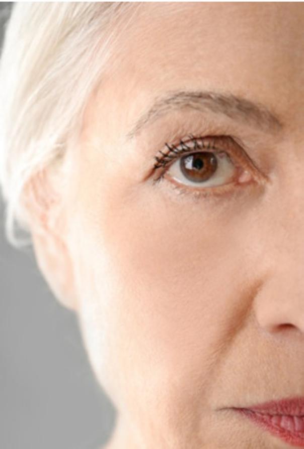 Nach der Korrektur der Augenringe