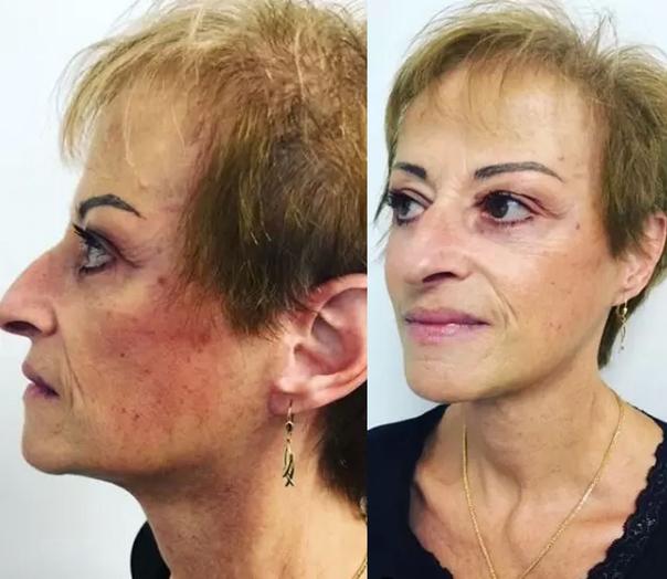 Patientin nach SMAS Facelift - Prof. Dr. med. Nektarios Sinis