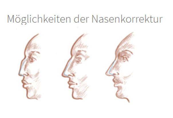 Eine Nase kann u.a. begradigt, verkleinert oder vergrößert werden - Dr. med. Sixtus Allert