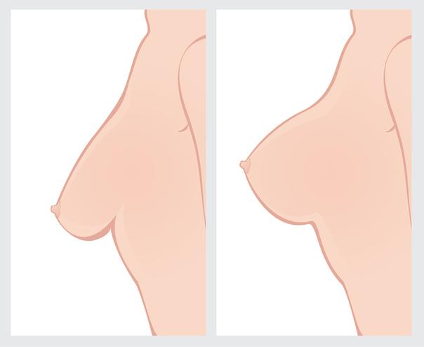 Hängebrüste entstehen vor allem nach Schwangerschaften und Stillen