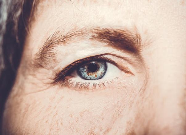 Die Augenlidstraffung gehört zu den häufigsten Schönheitsoperationen