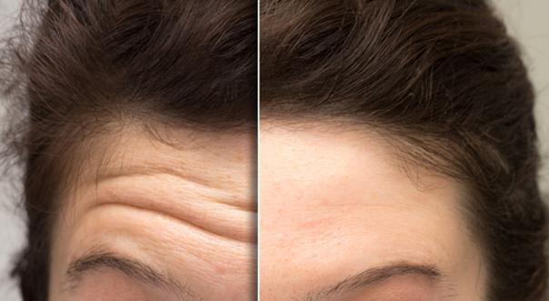 Die Ästhetische Medizin bietet viele Möglichkeiten um lästige Stirnfalten zu glätten