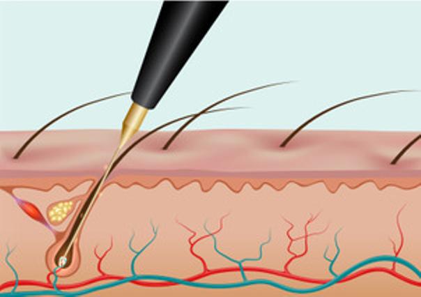 Die elektrische Nadel wird in den Haarfollikel eingeführt