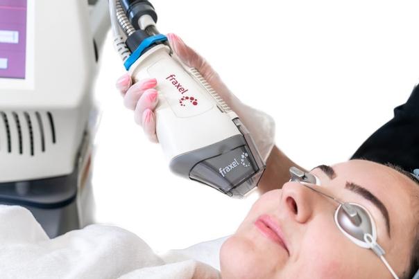 Wie läuft die Resurfacing Behandlung ab?