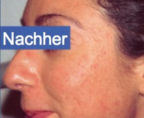 Es gibt sehr effektive Behandlungen zur Bekämpfung von Aknenarben - Hautarztpraxis Dr. Degenhardt